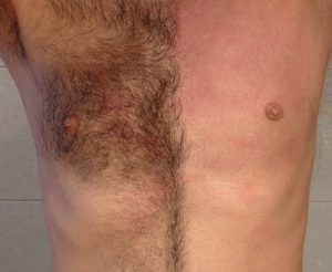painless chest waxing